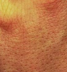 220px-Menschliche_Haut